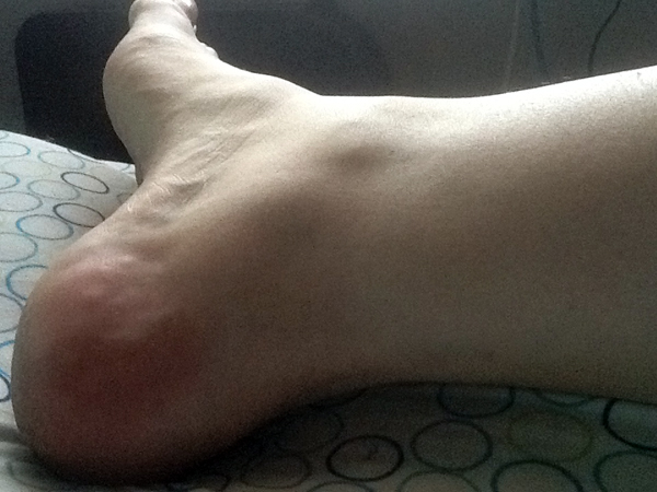 anklepic